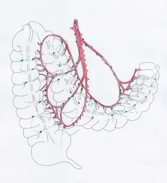 Atlas Hémicolectomie droite 5