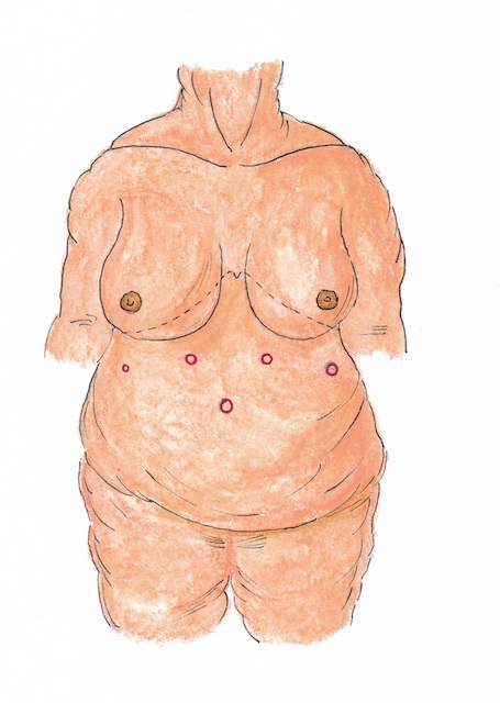 Atlas Scopic Gastric Bypass 1