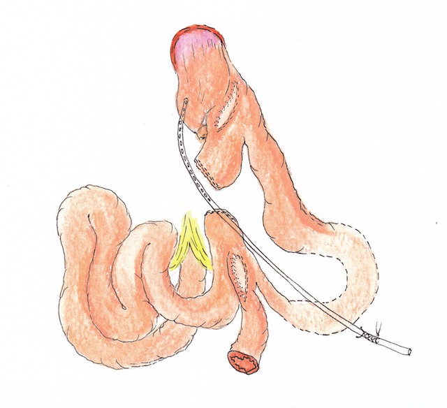 Atlas Scopic Gastric Bypass 10